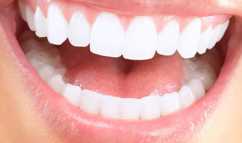 Tabaco y alcohol, motivos por el que se producen rechazos de los implantes dentales.
